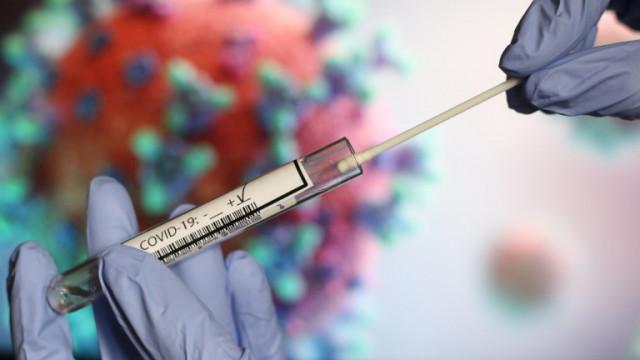 Бързите COVID тестове в Германия и Швейцария ще се заплащат