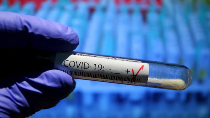 Установиха огнище на COVID-19 в социален дом в габровското село