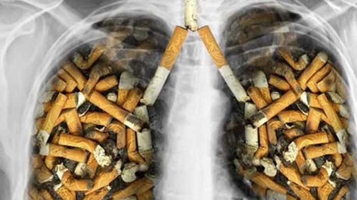 Цигарите са най-големият убиец на белите дробове