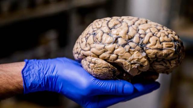 5 прости начина за подобряване на мозъчната дейност