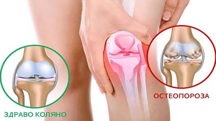 При 40% от изследваните за остеопороза има започнал процес на костна загуба
