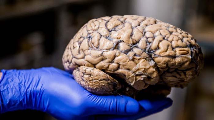 COVID-19 атакува паметта и концентрацията
