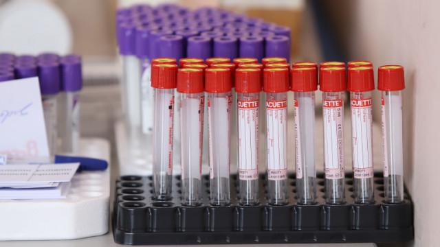 Отпада PCR тестът за дарители на кръвна плазма в УМБАЛ-Бургас