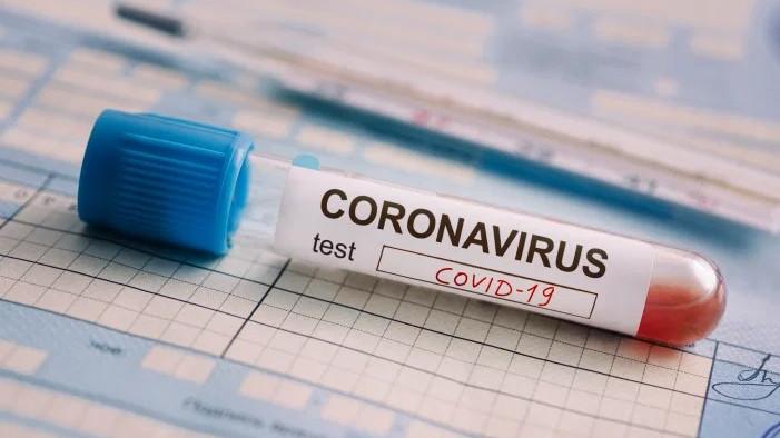 Нови 1310 случая на COVID-19 у нас през последното денонощие