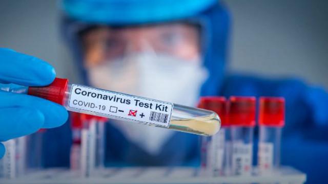 750 нови случая на COVID-19 са установени у нас през последното денонощие