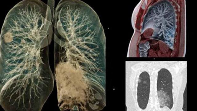 Какви поражения нанася COVID на белите дробове