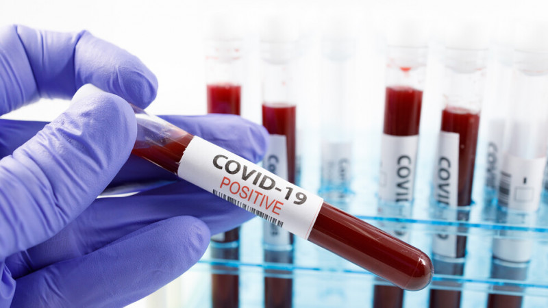 114 са излекуваните от COVID-19 за денонощието, 28 пациенти са изписани от болниците във Варна