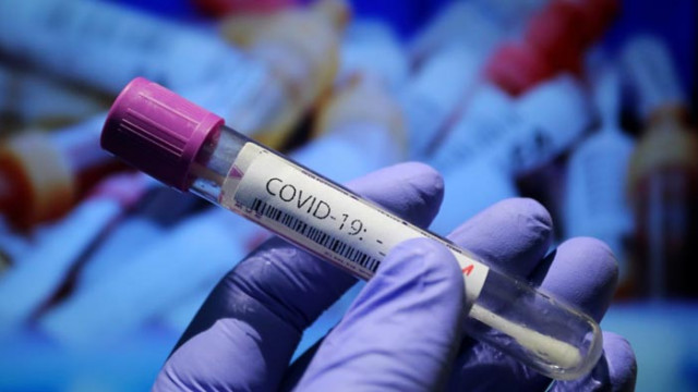 МЗ: Незаконно е изискване на PCR тест като условие за прием в болница