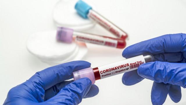 COVID-19 не попадал в зоната на особено опасните инфекции