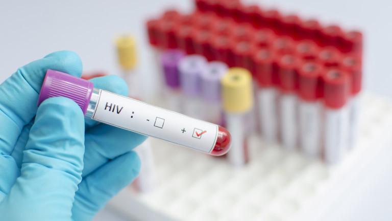 Ресурсите за борба с ХИВ по света намаляват през последните
