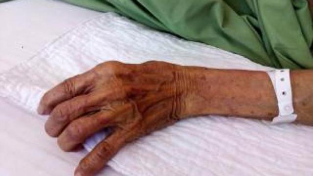 33-годишен варненец е нанесъл жесток побой на 77 годишна жена във Варна