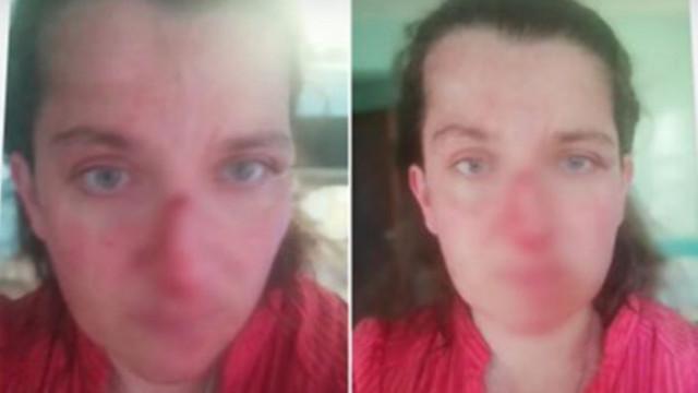 Мъж с биполярно разстройство преби сестра си в собствения й дом