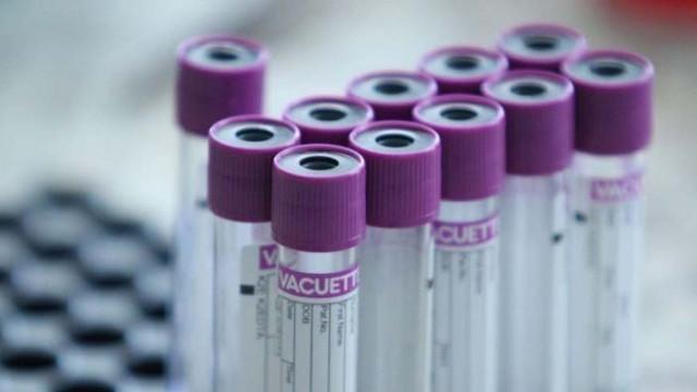 Антирекорд в САЩ: Над 55 хил. заразени за един ден