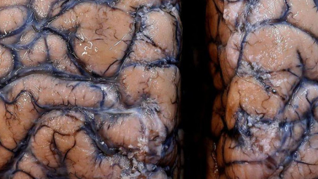 COVID-19 причинява сериозни мозъчи увреждания и неврологични изменения