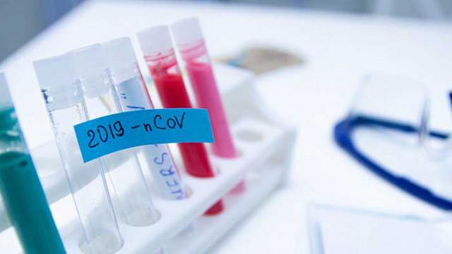 13 починали през последното денонощие, нови 284 са диагностицирани с COVID-19
