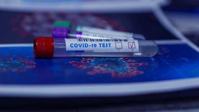 171 нови случая на COVID-19 у нас, голям брой и на излекуваните